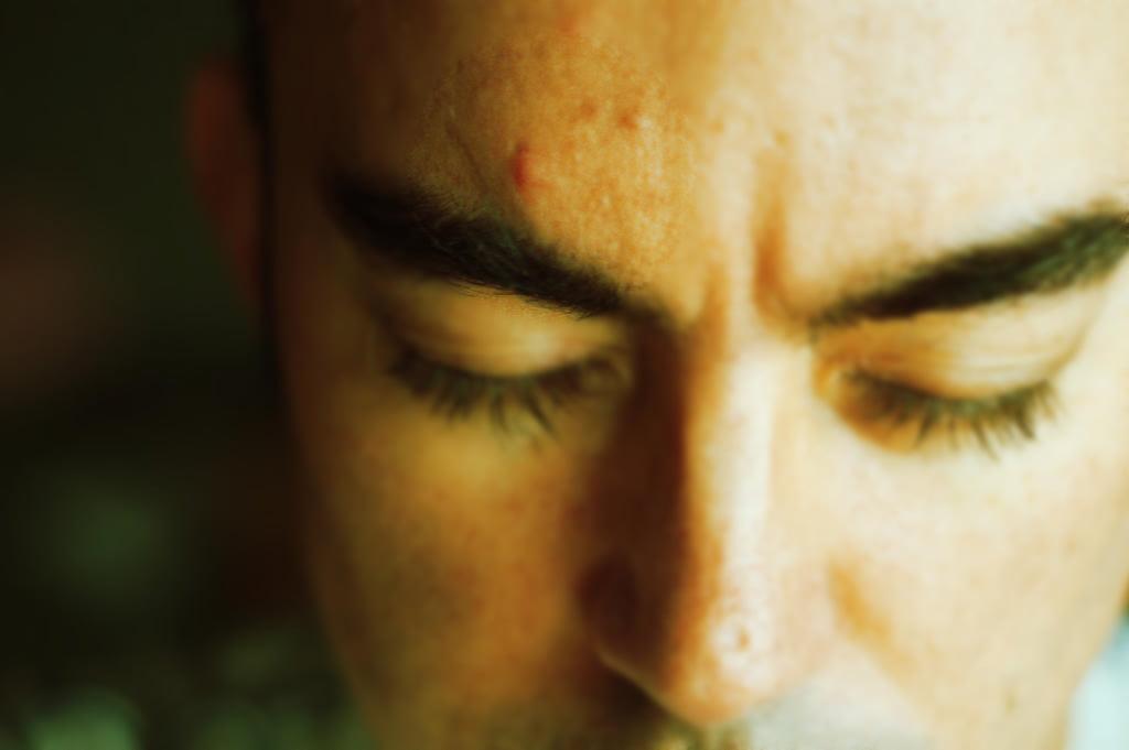 aloe vera para el acne